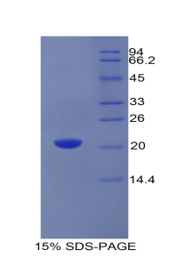 Recombinant Growth Arrest Specific Protein 6 (GAS6)