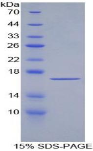 Recombinant Transforming Growth Factor Beta 2 (TGFb2)