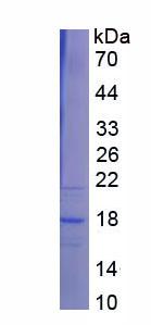 Recombinant Transcription factor 20 (TCF20)