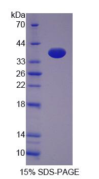 Recombinant Transferrin Receptor 2 (TFR2)