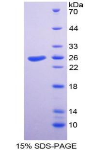 Recombinant Talin 1 (TLN1)