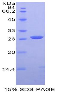 Recombinant Alpha-Fodrin (SPTAN1)