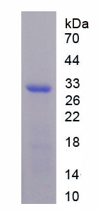 Recombinant Neuronal Pentraxin II (NPTX2)