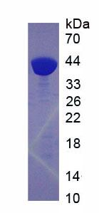 Recombinant Cathepsin L (CTSL)