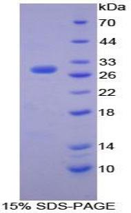 Recombinant Matrix Metalloproteinase 15 (MMP15)