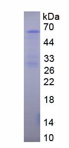 Recombinant Collagen Type I Alpha 1 (COL1a1)