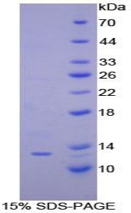 Recombinant Interferon Gamma Induced Protein 10kDa (IP10)