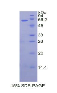 Recombinant Tissue Factor Pathway Inhibitor (TFPI)