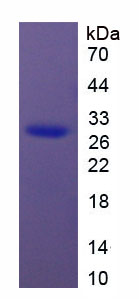 Recombinant High Mobility Group Protein 1 (HMGB1)