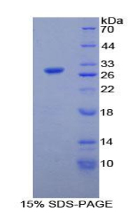Recombinant Phospholipase A2, Calcium Independent (iPLA2)