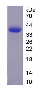 Recombinant N-Terminal Pro-Brain Natriuretic Peptide (NT-ProBNP)