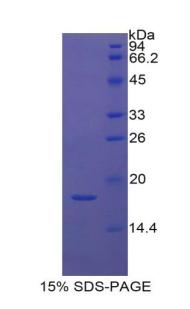 Recombinant Cytokeratin 1 (CK1)