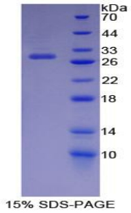 Recombinant Cyclin Dependent Kinase 9 (CDK9)
