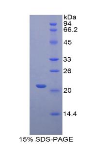Recombinant Fibrinogen Like Protein 2 (FGL2)
