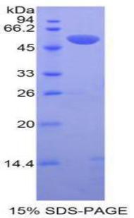 Recombinant Tissue Plasminogen Activator (tPA)