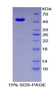Recombinant Plasminogen Activator Inhibitor 1 (PAI1)