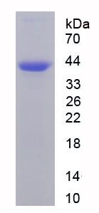Recombinant Immunoglobulin A (IgA)