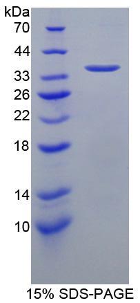 Recombinant Intercellular Adhesion Molecule 1 (ICAM1)