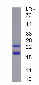 Recombinant Fibroblast Growth Factor 2, Basic (FGF2)