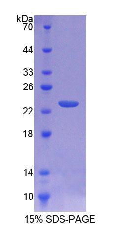 Recombinant Tissue Inhibitors Of Metalloproteinase 1 (TIMP1)