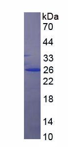 Recombinant Cytokeratin 7 (CK7)