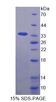 Recombinant Interleukin 1 Beta (IL1b)