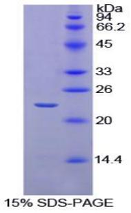Recombinant Interleukin 1 Beta (IL1b)