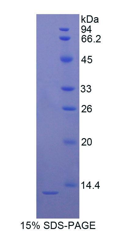 Recombinant S100 Calcium Binding Protein B (S100B)