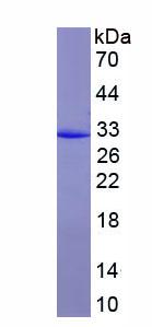 Recombinant Procollagen I C-Terminal Propeptide (PICP)
