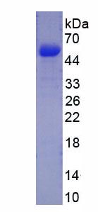Recombinant Procollagen III N-Terminal Propeptide (PIIINP)