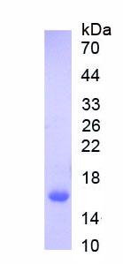 Recombinant Pyruvate kinase isozymes M2 (PKM2)