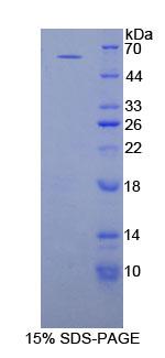 Recombinant Proliferating Cell Nuclear Antigen (PCNA)
