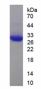 Recombinant Apolipoprotein B100 (APOB100)