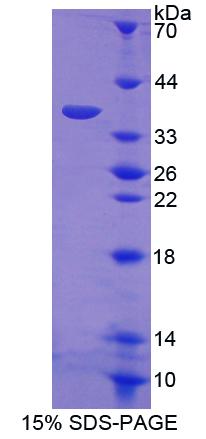 Recombinant V-Rel Reticuloendotheliosis Viral Oncogene Homolog A (RELA)