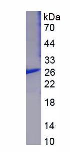 Recombinant Glutathione S Transferase Mu 1 (GSTM1)