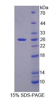 Recombinant Heat Shock 27kDa Protein 1 (HSPB1)