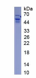 Recombinant Prothrombin Fragment 1+2 (F1+2)