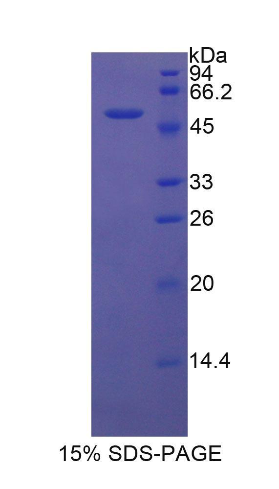 Recombinant Dickkopf Related Protein 1 (DKK1)
