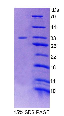 Recombinant Forkhead Box Protein O3 (FOXO3)