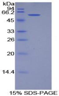 Recombinant Podocalyxin (PODXL)