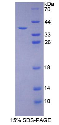 Recombinant Programmed Cell Death Protein 1 Ligand 1 (PDL1)