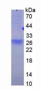 Recombinant Tumor Necrosis Factor Receptor Superfamily, Member 17 (TNFRSF17)