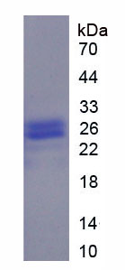 Recombinant Alpha-1-Acid Glycoprotein (a1AGP)