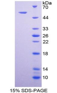 Recombinant Death receptor 5 (DR5)