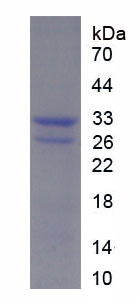 Recombinant Parathyroid Hormone Related Protein (PTHrP)