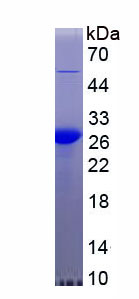 Recombinant C Reactive Protein (CRP)