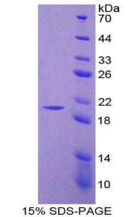 Recombinant Nitric Oxide Synthase 2, Inducible (NOS2)