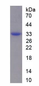 Recombinant Coagulation Factor IX (F9)
