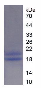 Recombinant Glycogen Phosphorylase, Liver (PYGL)