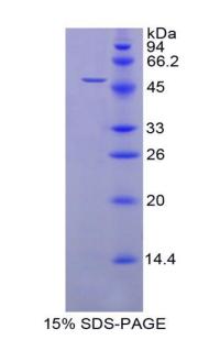 Recombinant Phospholipase A2, Lipoprotein Associated (LpPLA2)